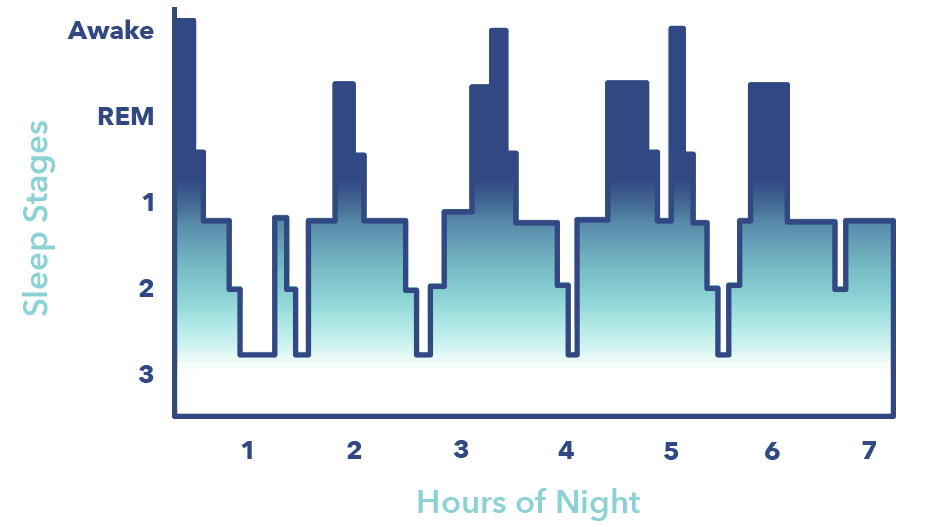 SO_SleepStagesGraphics_SleepArchitecture The 4 Stages Of Sleep — Cycles, Phases, and Improvement
